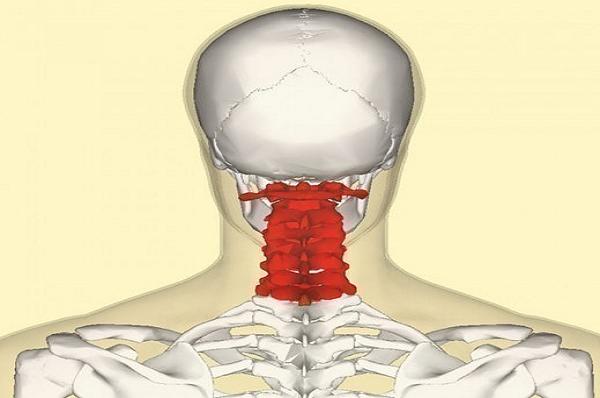 связь гипертонии и остеохондроза шейного отдела позвоночника