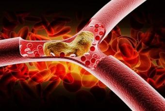 высокий холестерин.на основе лечебных трав
