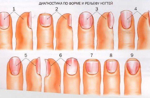 Нормальная форма здорового ногтя. Короткий, плоский ноготь — заболевания сердечно-сосудистой системы. Увеличенные, выпуклые (как часовое стекло) ногти — заболевания сердца, легких, печени или позвоночника. Плоский искривленный ноготь — бронхиальная астма, бронхит. Трубковидный высокий ноготь —предвестник возможного онкологического заболевания. На пальцах рук — заболевание верхних отделов тела, на пальцах ног — нижних. При этом совсем не обязательно, чтобы все ногти были такой формы. Вогнутый ноготь — признак нарушения минерального обмена, проблем кожи, анемии, заболеваний щитовидной железы. Плоский, расщепленный на конце ноготь — глистная инвазия. Обгрызенный ноготь (встречается вариант с ногтем, полностью погруженным в плоть) — неврозы, гастрит. Треугольный ноготь — заболевания позвоночника. Диагностика по ногтевым лункам Хорошо заметные лунки ногтей на всех пальцах — показатель высоких жизненных сил и хорошего кровообращения. Очень маленькие лунки или их полное отсутствие — сердечная недостаточность и нарушение кровообращения; возможен недостаток витамина В12, нарушение функции щитовидной железы, невроз. Увеличенные лунки на ногтях — патологии сердечной деятельности. Лунки голубоватого цвета — признак нарушений работы печени. Лунки красноватого оттенка — симптом сердечной недостаточности, аутоиммунные или эндокринные проблемы, ревматические заболевания. Полоски и волны на ногтях Поперечные борозды — недавно перенесенное тяжелое инфекционное заболевание. Продольные бороздки — предрасположенность к ревматизму, плохое пищеварение, проблемы с кишечником, нерегулярные менструации, половая слабость, депрессия, нервозность, бессонница. Горизонтальные вмятины или ямки — неблагоприятно сказавшееся на организме изменение диеты. Полоски и вкрапления на ногте — заболевания селезенки и тонкой кишки. Ломкие желобки на ногте — отложения извести. Белые поперечные штрихи — недостаток цинка или кальция. Миндалевидные волны-прожилки — ревматизм. Диагностика по цвету ногтей Неравноме