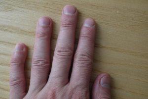 лунки ногтей 4