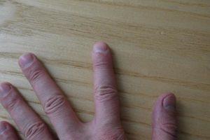 лунки ногтей 8