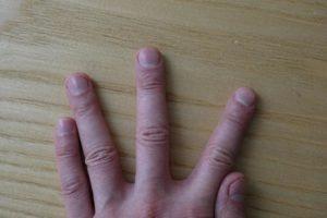 лунки ногтей средний палец