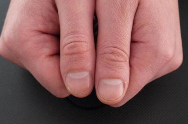 о чём говорят лунки ногтей