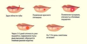 Герпес. Болезнь поцелуев: как вылечить герпес