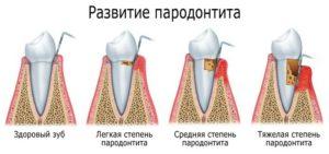 парадонтит