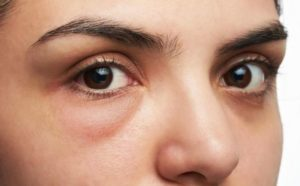 Простое и эффективное фитолечение мочегонными травами при отеках лица