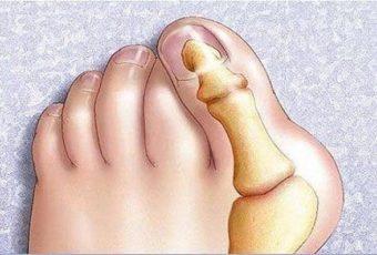 Несколько способов избавиться от косточки на ноге без помощи хирурга