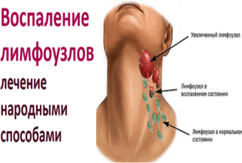 Воспаление лимфоузлов — лечение народными средствами
