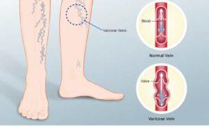 Варикоз: неявные симптомы и методы лечения