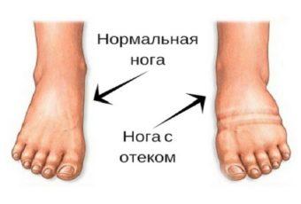 Отечность ног и боли – рецепт читательницы