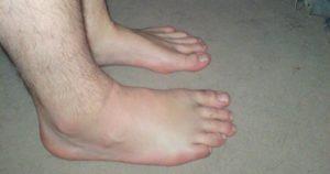 ИЗБАВЬТЕСЬ ОТ ОТЕКОВ: Этот мощный домашний ЧАЙ вылечит опухшие ноги за несколько дней